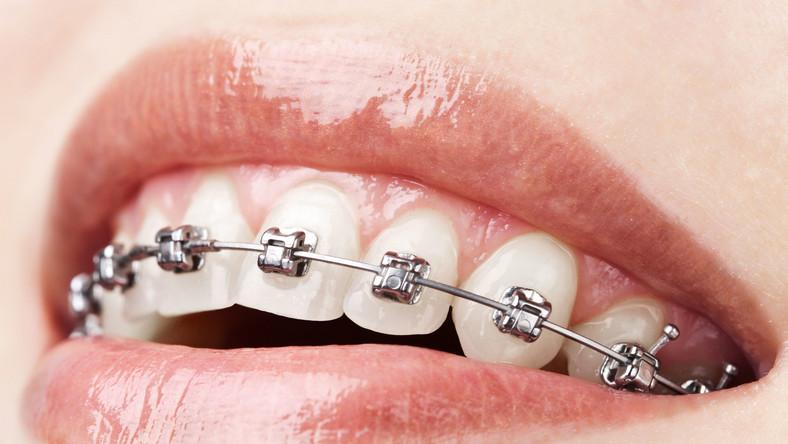 Aparat ortodontyczny na zębach
