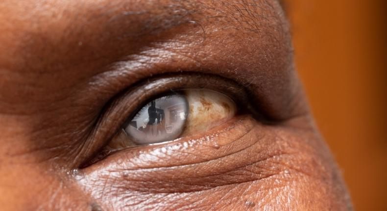 cataracte-cristallin-oeil-operation