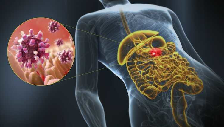 Gastroenteritis, a 3D medical illustration of affected organ highlight. Disease affects the intestines (Science journal)