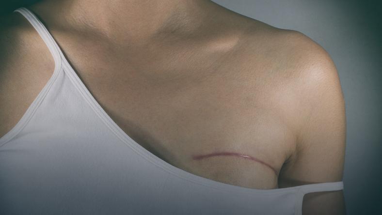 Nietypowe Objawy Raka Piersi Ostrzegaja Kobiety Ktore Zachorowaly