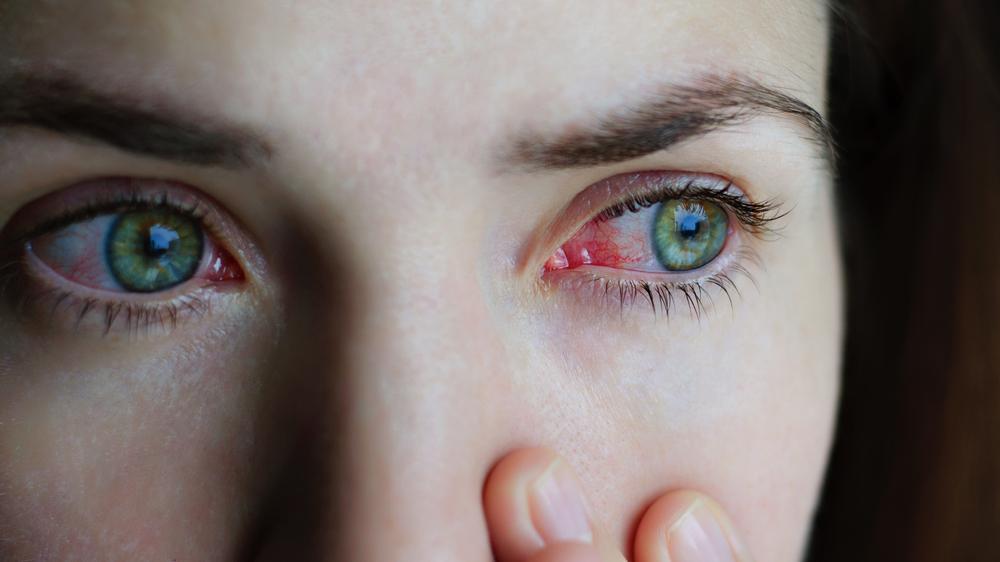 Giardiázis: mit érdemes tudni róla? - HáziPatika Giardiasis szem tünetek kezelése