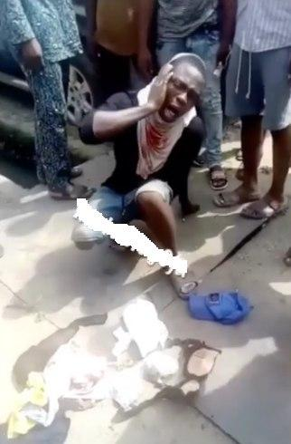 A man deals with the pain that has followed some pummeling by a mob that caught him with stolen underwear.