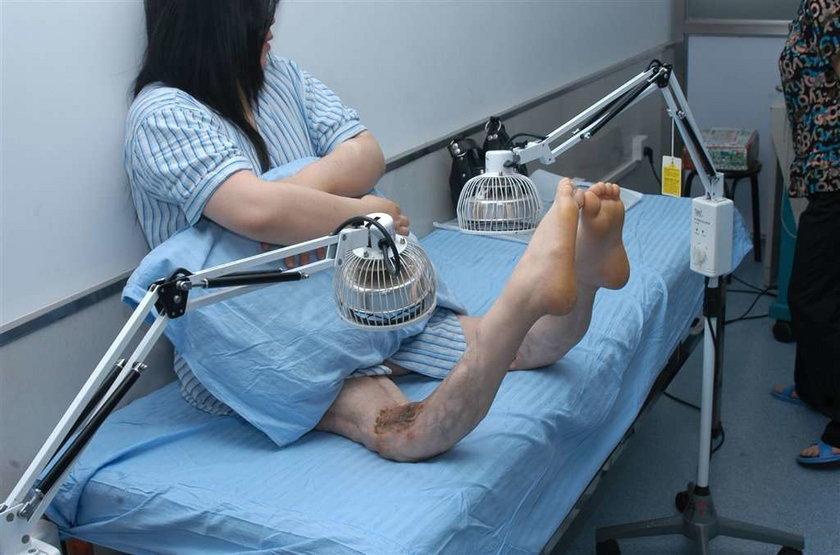 Kobieta z wygiętymi nogami. Foto
