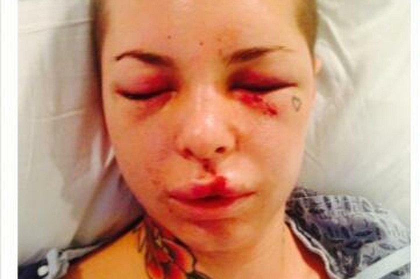 Jon Koppenhaver brutalnie pobił partnerkę. Zawodnikowi MMA grozi dożywocie