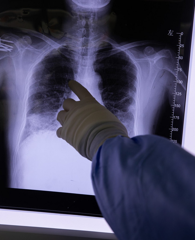 Australijski stručnjaci o upali pluća koju izaziva kovid-19