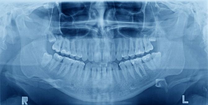 Reagujte čim primetite problem sa zubima