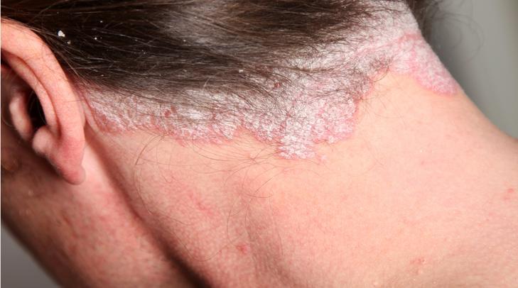 Pikkelysömör a fej hátsó részén | Sanidex Magyarországon