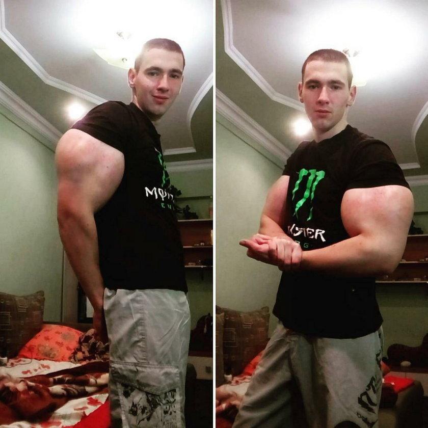 Ryzykował życie dla bicepsa!