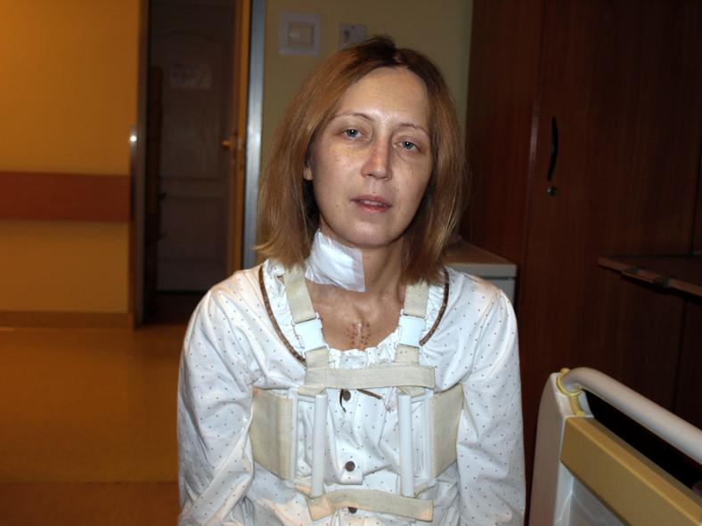 Adriana Szklarz w szpitalu po przeszczepie serca