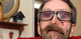 Oto człowiek bez twarzy! Drastyczne FOTO!