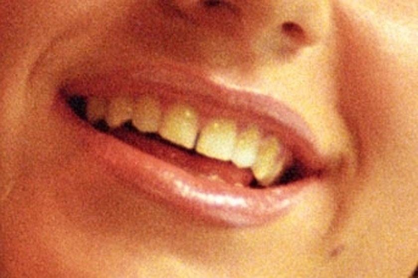 Zęby Dody
