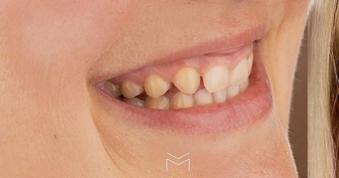 Problem sa zubima
