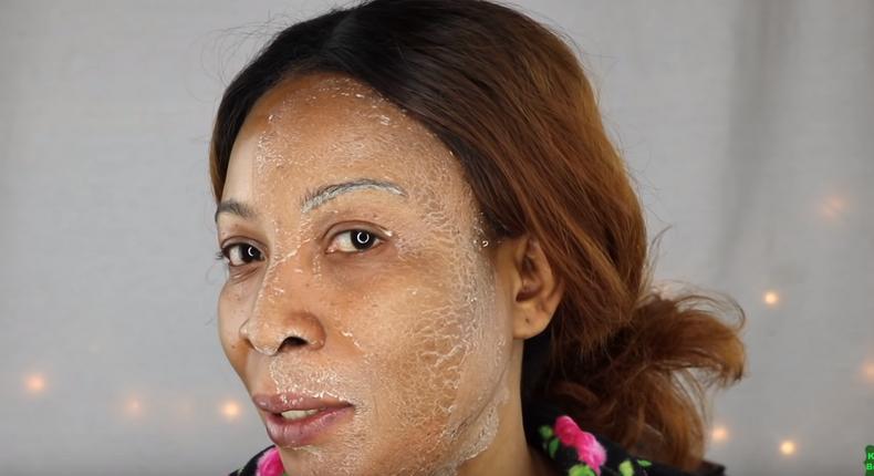 Egg and potato face mask (Khichi Beauty)