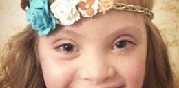 9-latka z zespołem Downa modelką znanej marki