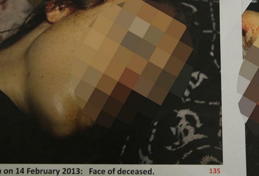 Zdjęcia ciała ofiary