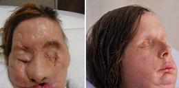 Zrekonstuowali jej twarz. Uwaga! Drastyczne FOTO