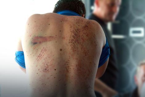 Jedan od pretučenih mladića pokazuje povrede