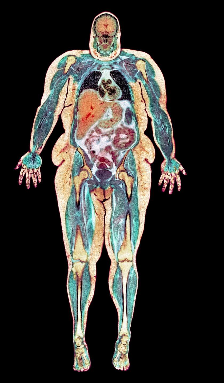 Obraz otyłej kobiety w rezonansie magnetycznym. Czerwony trójkąt w centrum zdjęcia to powiększona wątroba, powyżej – czarne – widoczne są zgniatane płuca