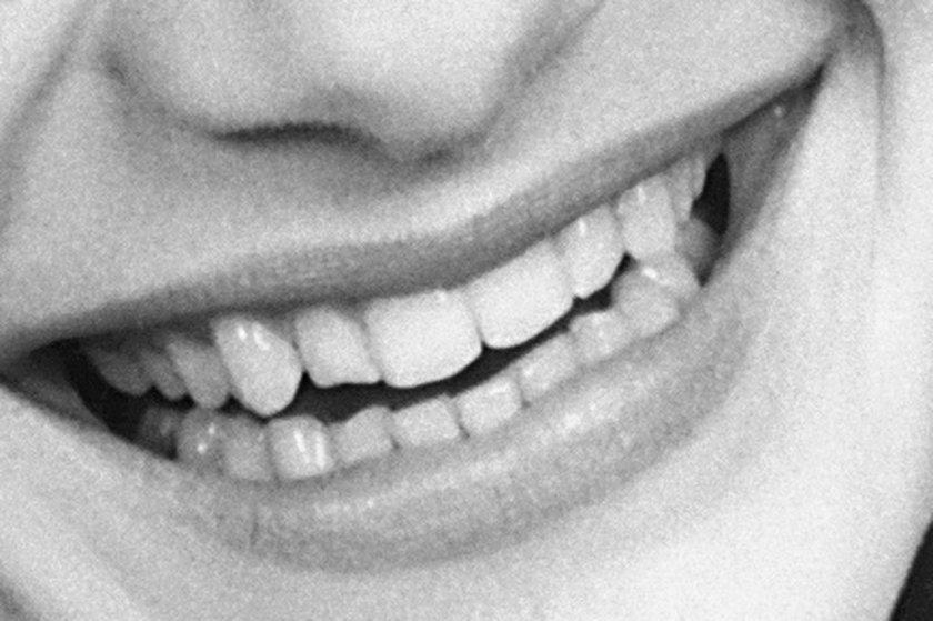 Zęby Małgorzaty Kożuchowskiej