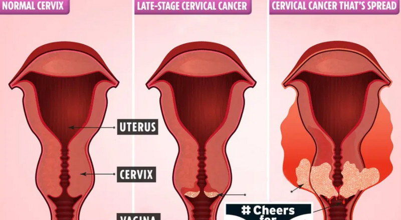 3 ways you can detect cervical cancer early and increase survival rate