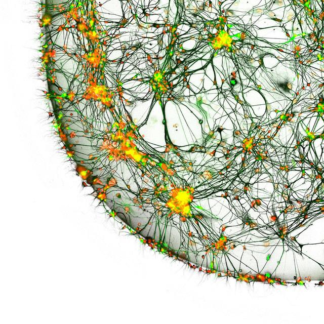 Neurony pobrano od pacjenta chorego na Parkinsona - 20-krotne przybliżenie