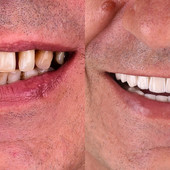 Crne fleke na zubima