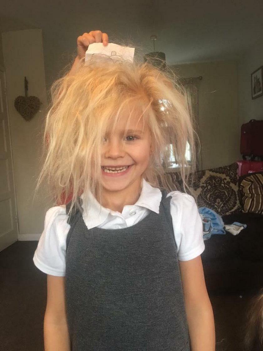 Wielka Brytania: 7-latka cierpi na zespół włosów niedających się uczesać