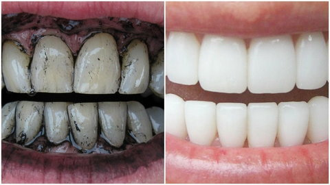 Activated charcoal is very effective at pulling stain off the teeth [ece-auto-gen]