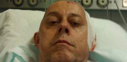 Polski bloger po operacji mózgu: Żyję i walczę dalej!