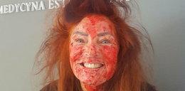 To nie Halloween! Co się stało z twarzą Perepeczko?