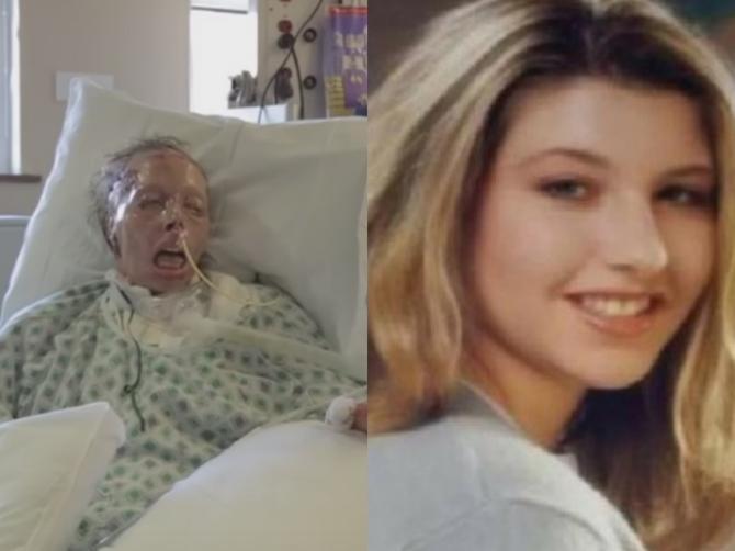 Prelepu ženu je ljubomorni dečko zapalio! Prošla je 50 operacija, a sada živi OVAKO