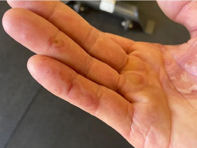 Kovid prsti: oboleli pokazali kako izgledaju kožne promene, ustupljena fotografija:  COVID Symptom Study