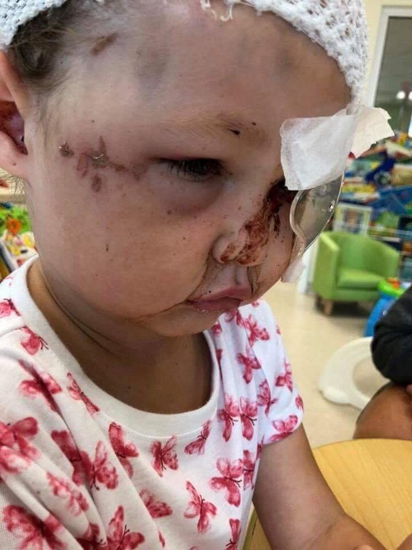 Pitbull zmasakrował twarz 5-latki. Zachowanie właścicielki to jakaś kpina