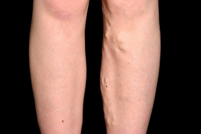 Proširene vene najčešće se javljaju između 35. i 60. godine života, ali mogu da se pojave i ranije, naročito u trudnoći