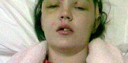 Obudziła się w szpitalu bez czoła. Kolanami zmiażdżyła sobie twarz!