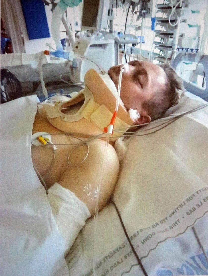 przeżył wypadek zmarł od zakażenia bakterią
