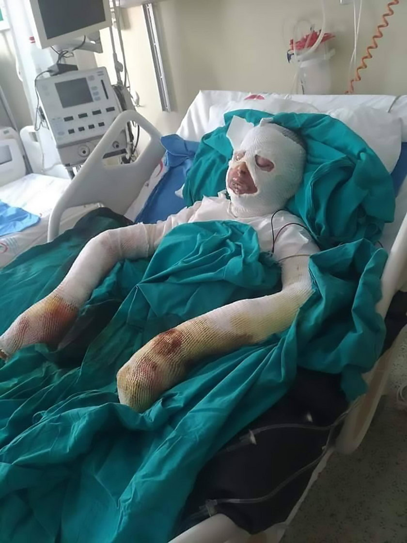 Turcja: Chciała pozbyć się wszy. Umyła głowę benzyną i zaczęła się palić
