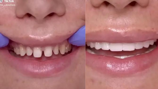 """Influenseri bi da imaju """"savršeen"""" zube po svaku cenu, stomatolozi upozoravaju da to može da bude veoma opasno"""