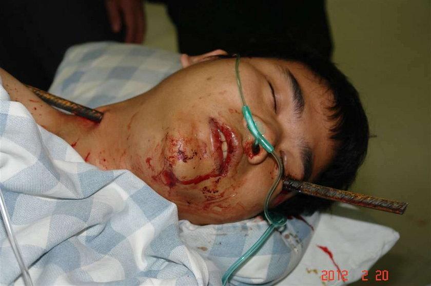 Chińczyk z prętem w głowie