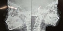Lekarze zajrzeli 10-latce do nosa. Byli w szoku