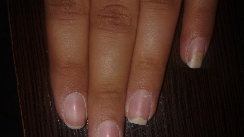 Causes and treatment of fingernails falling off