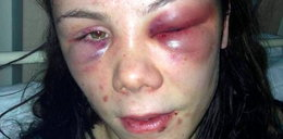 8 godzin torturowali 17-latkę. Cudem ocalała