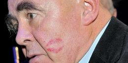 Odcisk szminki na policzku Tyma. Tego buziaka zrobiła...