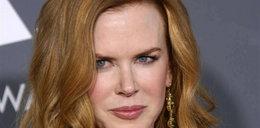 Nicole Kidman jedzie ostro z botoksem?