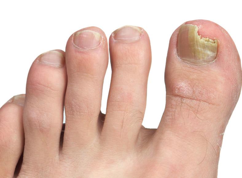 Zainfekowana płytka paznokciowa ulega częściowemu wykruszeniu