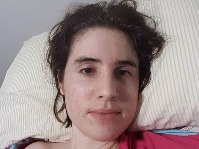 """Ona ima 27 godina i umire: """"Mozak mi se pretvara u KAŠU, pustite me da umrem"""""""