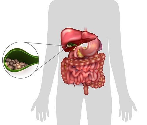 fogyókúrás hólyagtörés