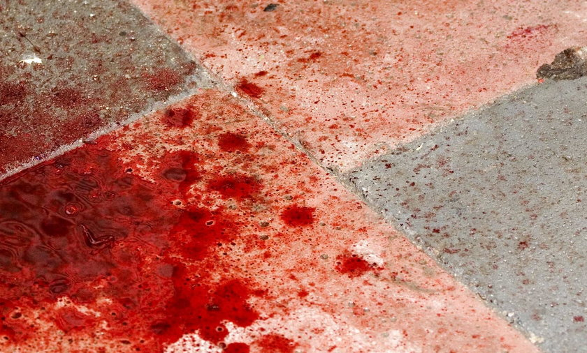 Dwie osoby ranione nożem w Zabrzu