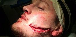 Koszmarna kontuzja rugbysty. Rywal rozorał mu twarz!
