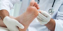 Jak pozbyć się grzybicy stóp